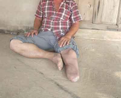 dad one-leg